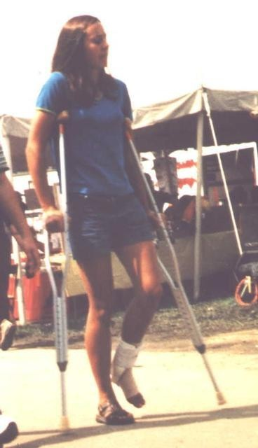20 Foot Walk Boards : The sprain and crutches board sprained aircast foot